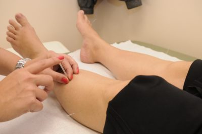 can acupuncture help your pain - Home Physio Group