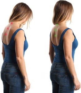 exercises to help with your posture - Home Physio Group