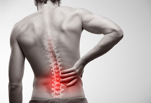 exercises to treat back pain - Home Physio Group