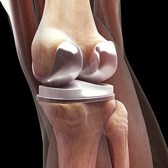 how long do I need to wait for a joint replacement - Home Physio Group