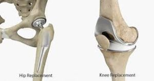 hip-and-knee-replacements