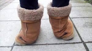 uggs-causing-foot-pain
